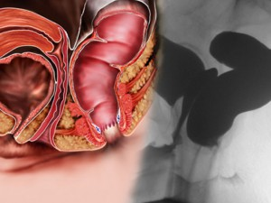 La proctologia in ambulatorio 3
